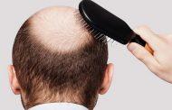 بهترین داروی ضد ریزش مو و بررسی قرص های تقویت کننده مو