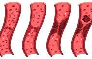لخته خون در بارداری چگونه به وجود می آید و درمان می شود؟