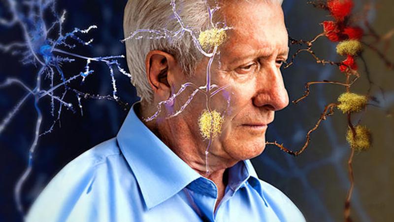 راههای پیشگیری از آلزایمر چیست؟