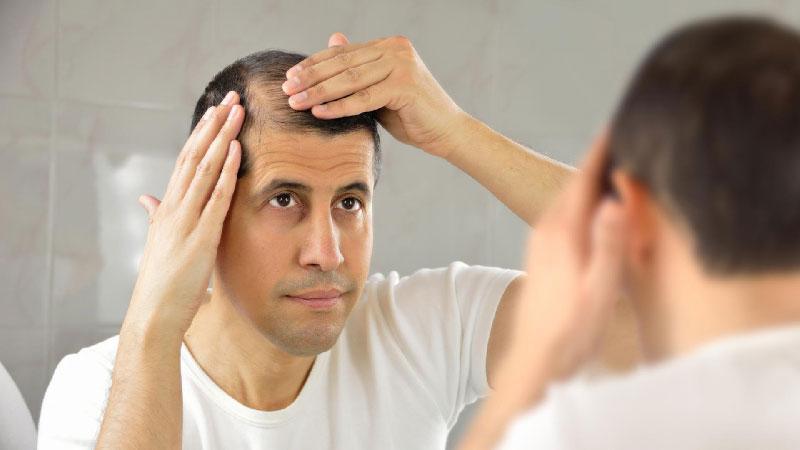 ریزش مو و کمبود ویتامین دی