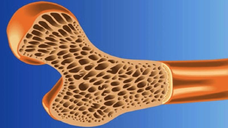 درمان پوکی استخوان چطور انجام می شود؟