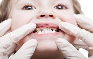 پوسیدگی دندان در کودکان به چه دلایلی ایجاد می شود؟