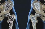 پوکی استخوان چیست و چرا به آن مبتلا می شویم؟
